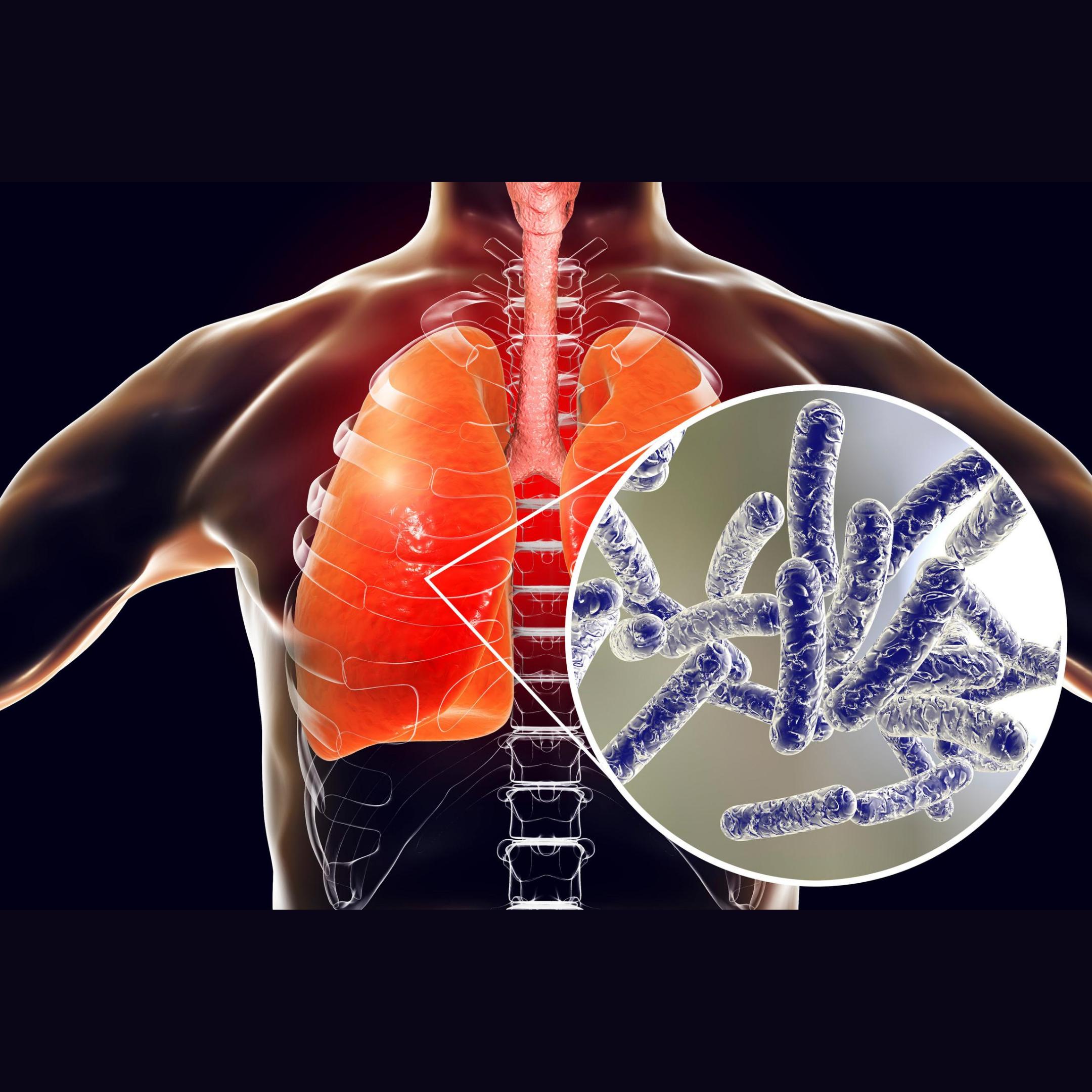 Legionnaires' Disease – Legionella 101